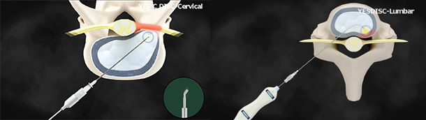Minimally-Invasive-Cervical-Catheter-&-Lumbar-Catheter